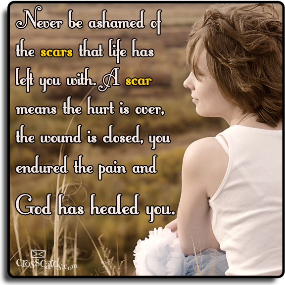 Are You Trying to Hide Your Scars?